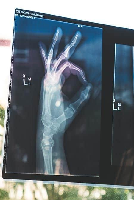 Radiographie démontrant les os d'une main faisant un signe que tout est parfait